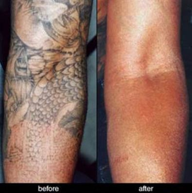 tattoo removal fresh start free citizens journal